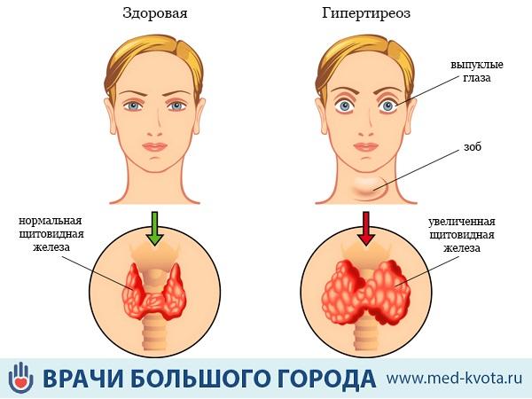 первые признаки щитовидки у женщин фото