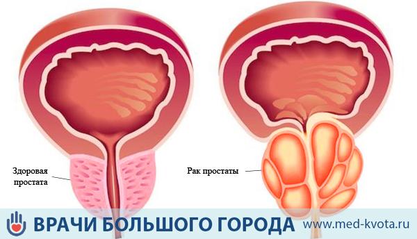 Операция при аденомы простаты последствия