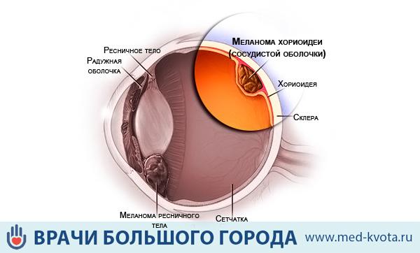 Цена операции при меланоме глаза