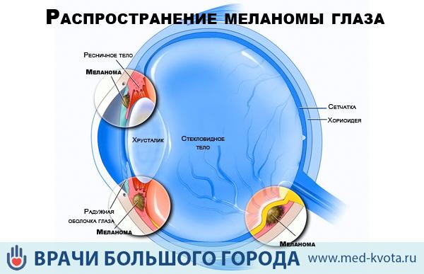 Меланома сетчатки глаза симптомы