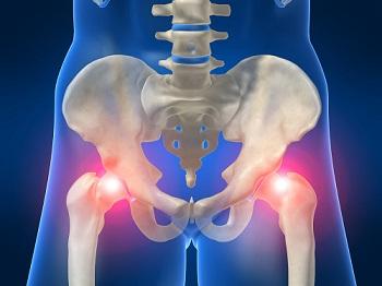 Эндопротезирование крупных суставов упражнения плечевого сустава при остеохондрозе