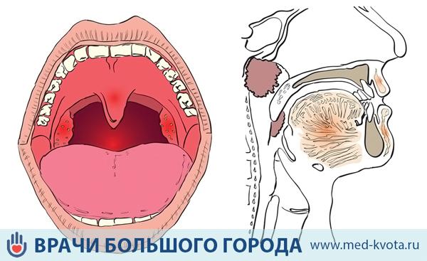 Рак голосовых связок