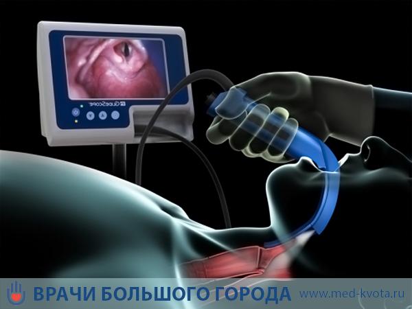 Лечение рака голосовых связок